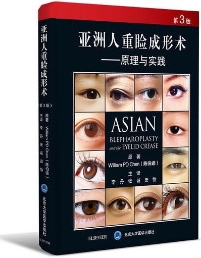 Asian Blepharoplasty and the Eyelid Crease translated in Chinese